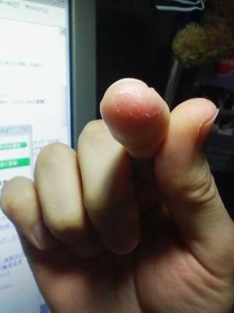 右手の人差し指の先が硬くなって皮向けたりヒビ入ったりしてるの図。